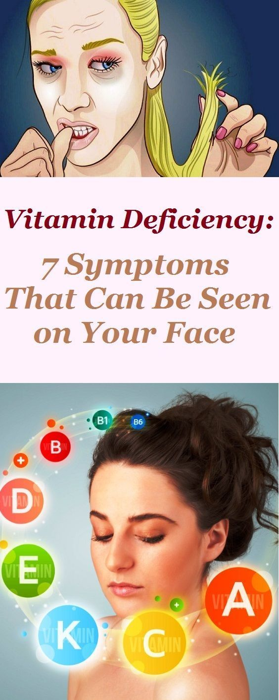 Vitamin Deficiency: 7 Symptoms That Can Be Seen on Your ...
