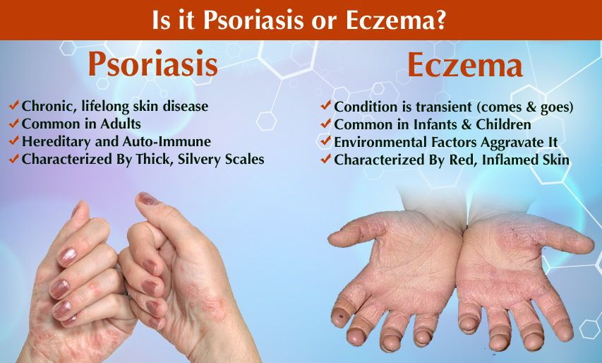 What Are The Difference Between Eczema And Psoriasis Psoriasis