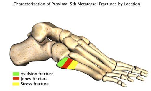 Proximal 5th Metatarsal Fractures New York Foot And Ankle Institute Metatarsal Fracture Avulsion Fracture Jones Fracture