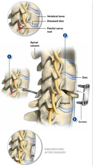 Pin by Southeastern Spine Institute on Surgical Procedures