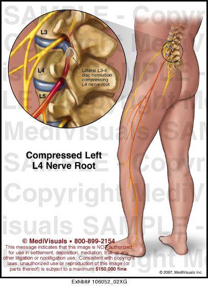 L3 L4 Nerve Root Pression | Spinal L1 to L5 | Pinterest ...