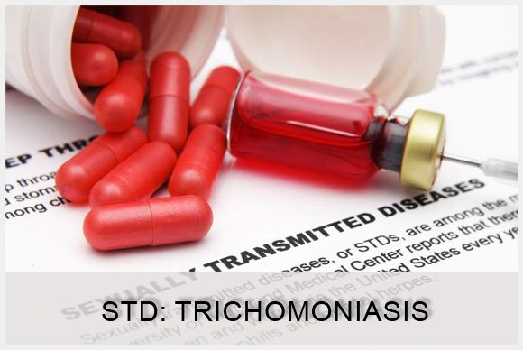 trichomoniasis facts trichomoniasis is a sexually transmitted, Human Body