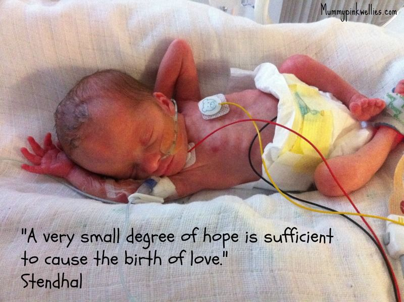 A Very Small Degree Of Hope Is Sufficient To Cause The Birth Of
