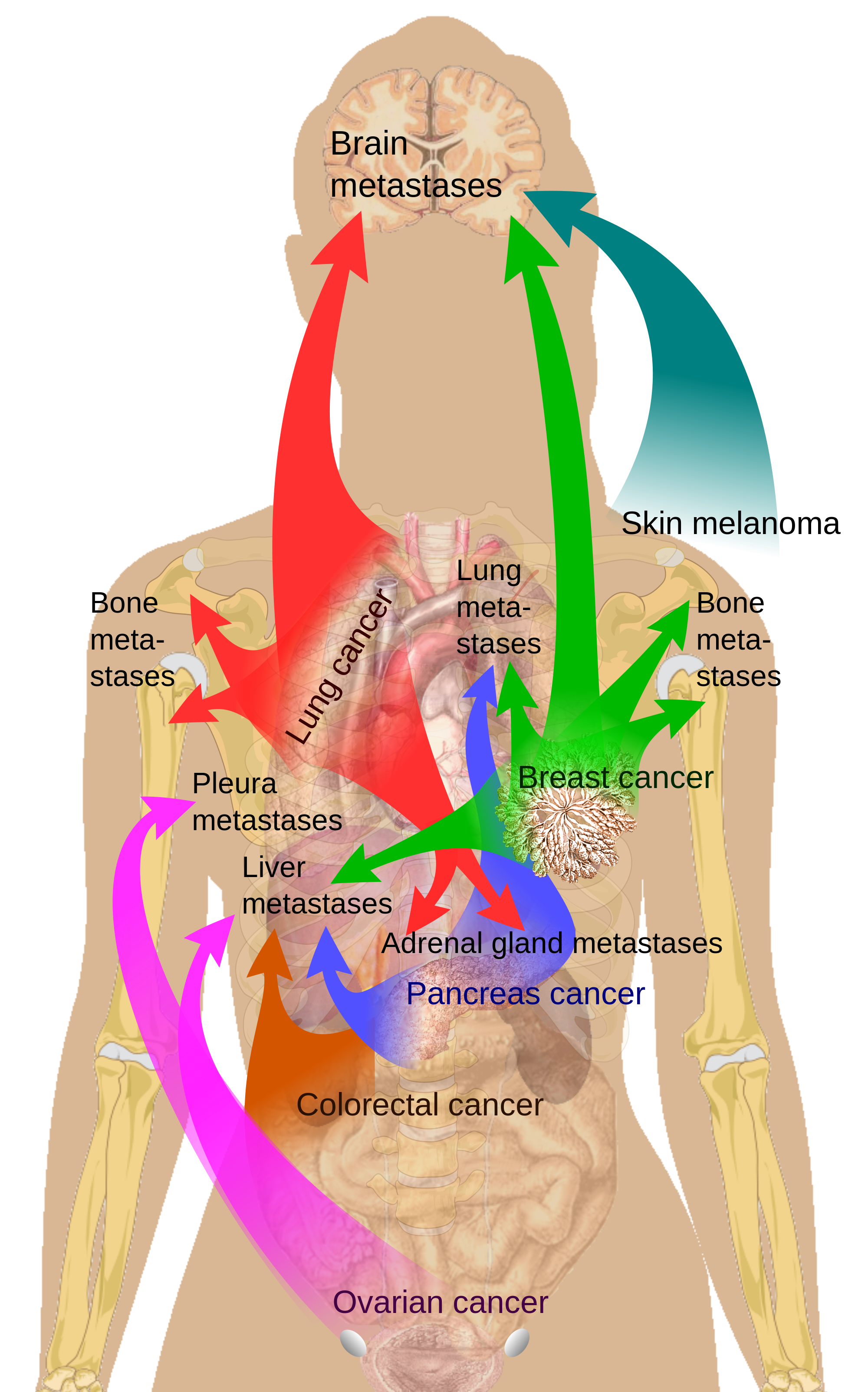 hight resolution of pain under left breast
