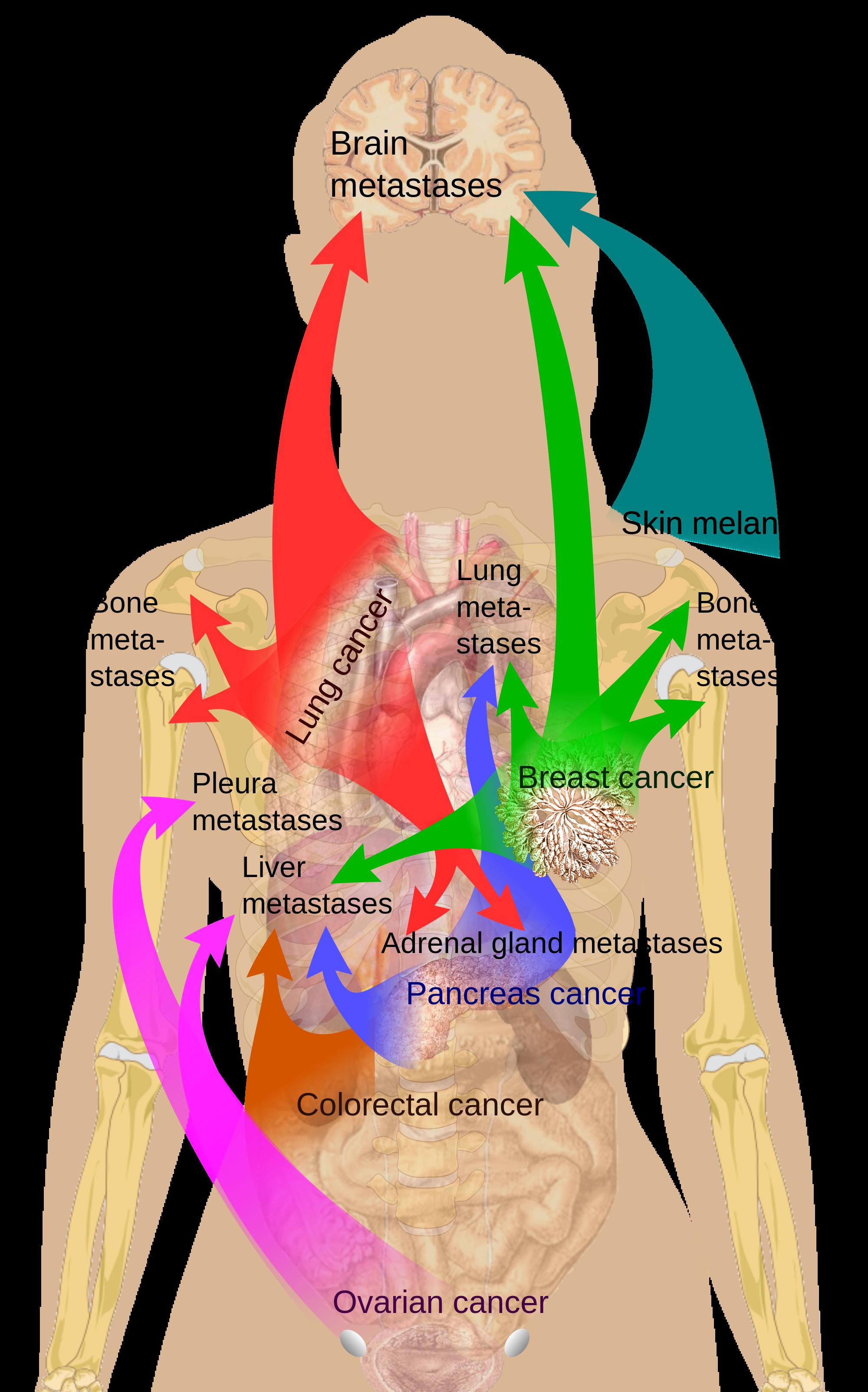 medium resolution of pain under left breast