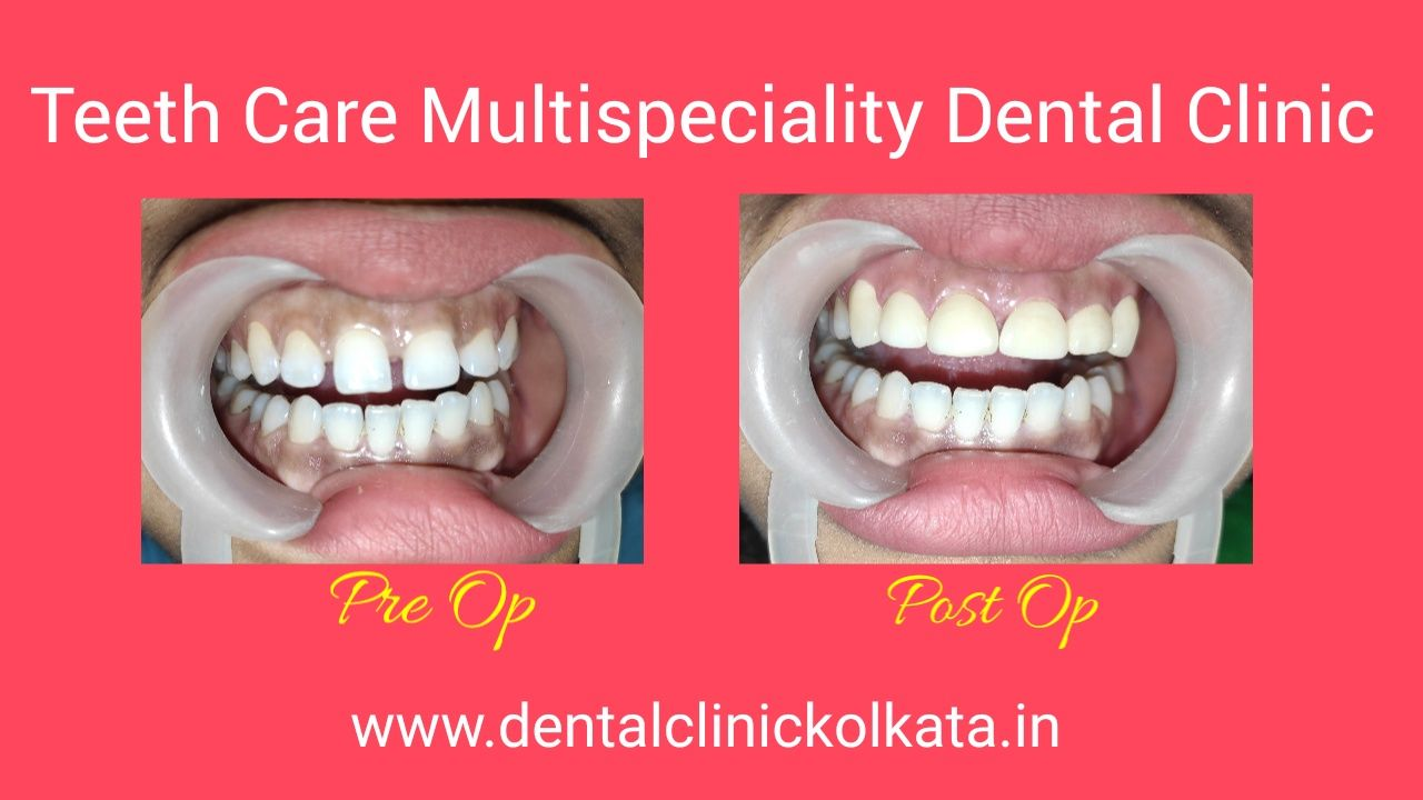 Best Dental Clinic in Kolkata Best Dentist in Kolkata