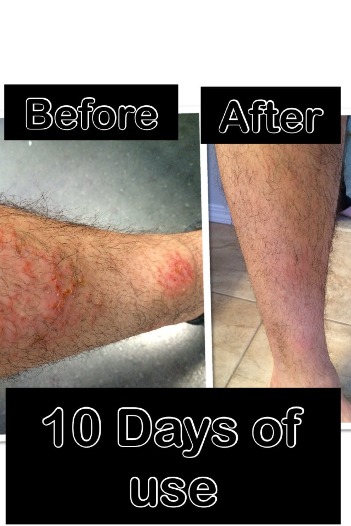 How to get rid of eczema rashes and bug bites safe for