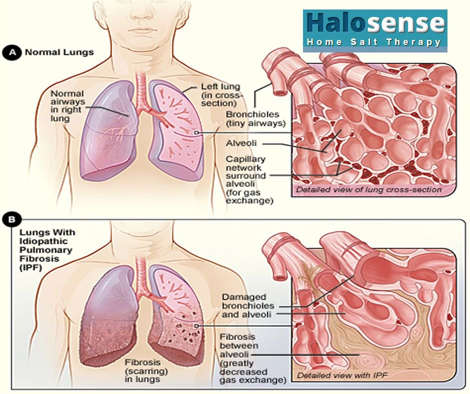 What Is Ipf Refers To Multiple Lung Conditions That Cause