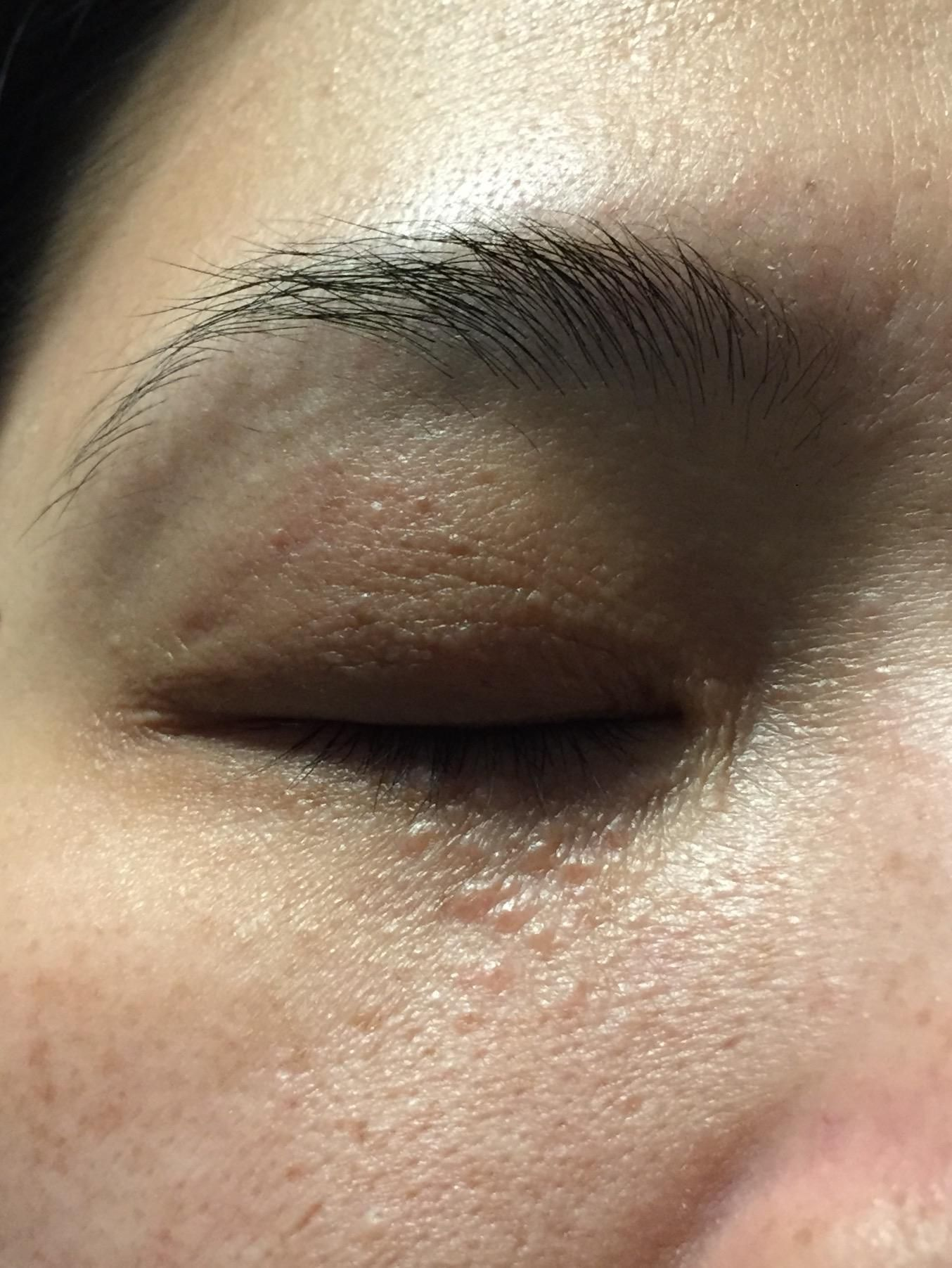 skin concerns] My aunt has these little bumps under her eyes