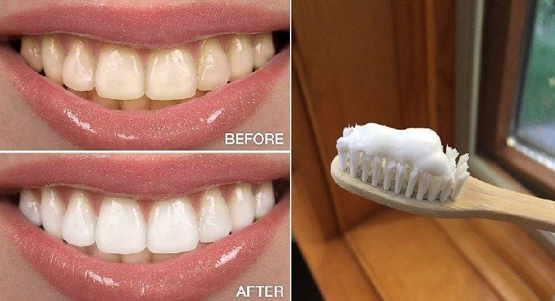 إذا كنت مهتما بصحة أسنانك و ترغب بأن تكون ناصعة البياض كاللؤلؤ عليك اختيار افضل معجون اسنان للتبييض و في هذا المقال ستجد افضل 10 أنواع من معاجين الأسنان المخت