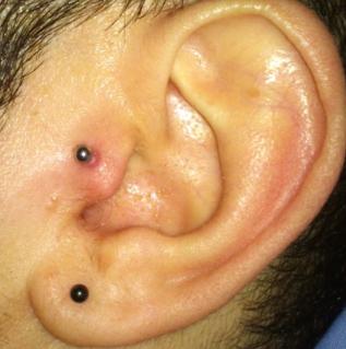 tragus piercing läkning