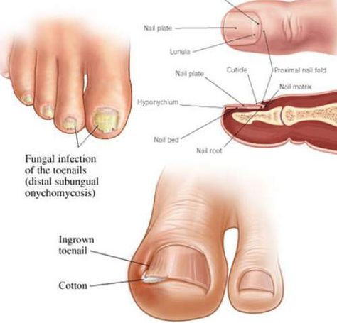 how-to-get-rid-of-toenail-fungus-using-just-3-simple-home-remedies ...