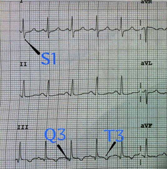 S1Q3T3 EKG Classic Pattern in Pulmonary Embolism (Example..