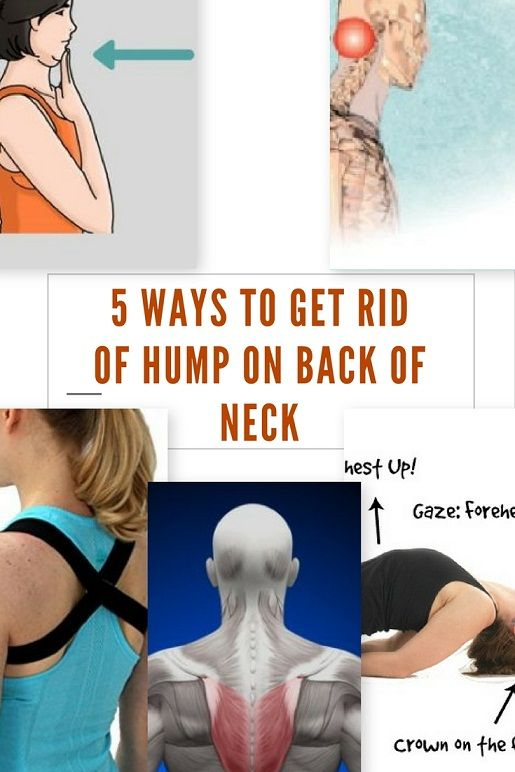 What Causes A Hump On Back Of Neck How To Get Rid Of It Fast In 2020 Exerciții Fizice Exerciții Sănătate