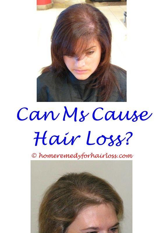goldwell anti hair loss serum - fatigue weakness dizziness loss of ...