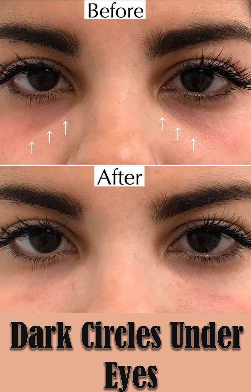 How do you get rid of dark circles under your eyes dark