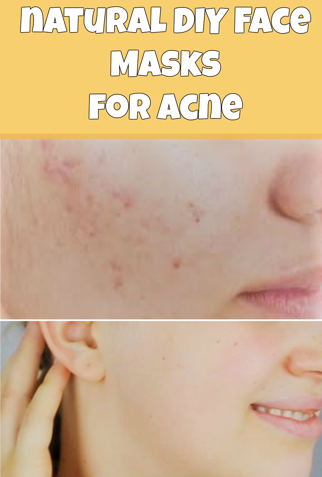 Natural Diy Face Masks For Acne Face Masks Acne Acne Prone