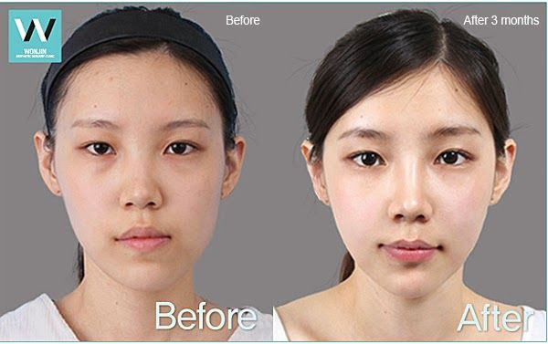 Facial Asymmetry Before And After Korean Plastic Surgery