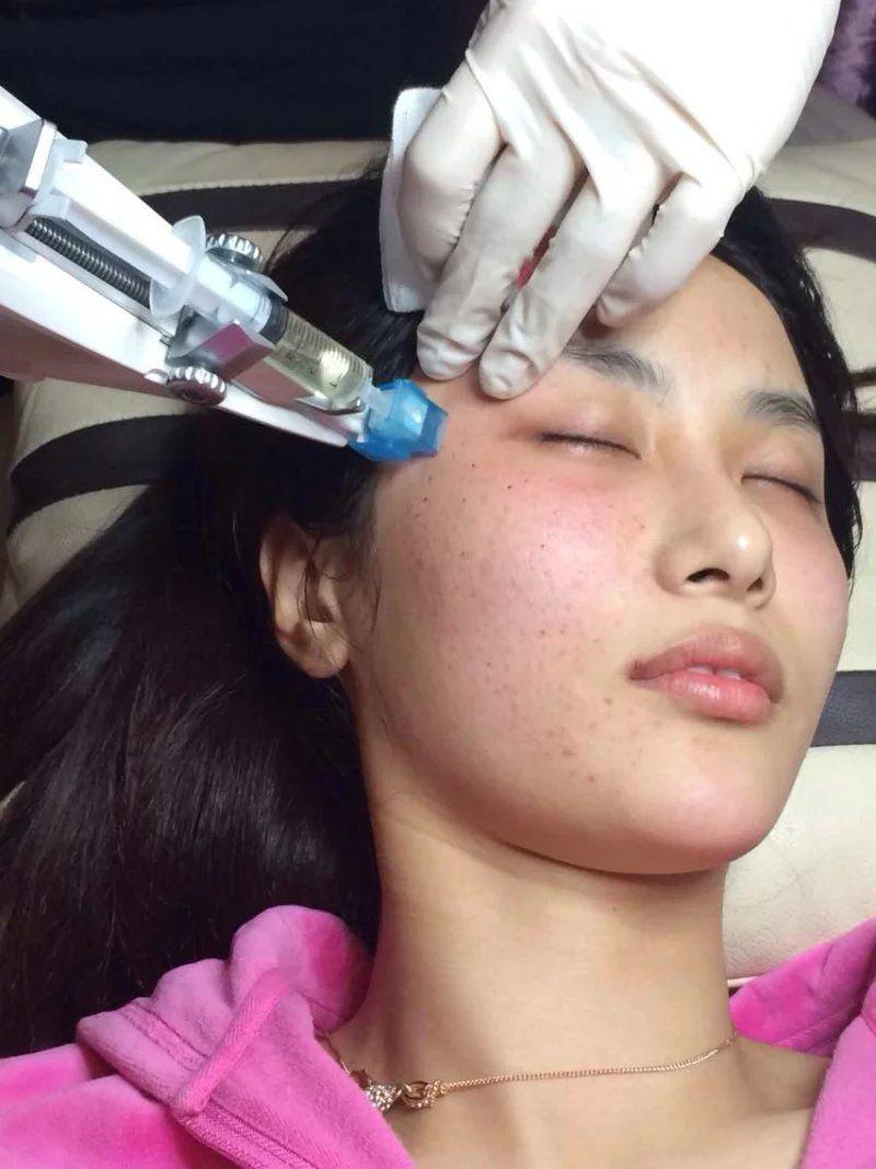 Mesoterapia Mesogun Mesotherapy injector gun - Medical injector