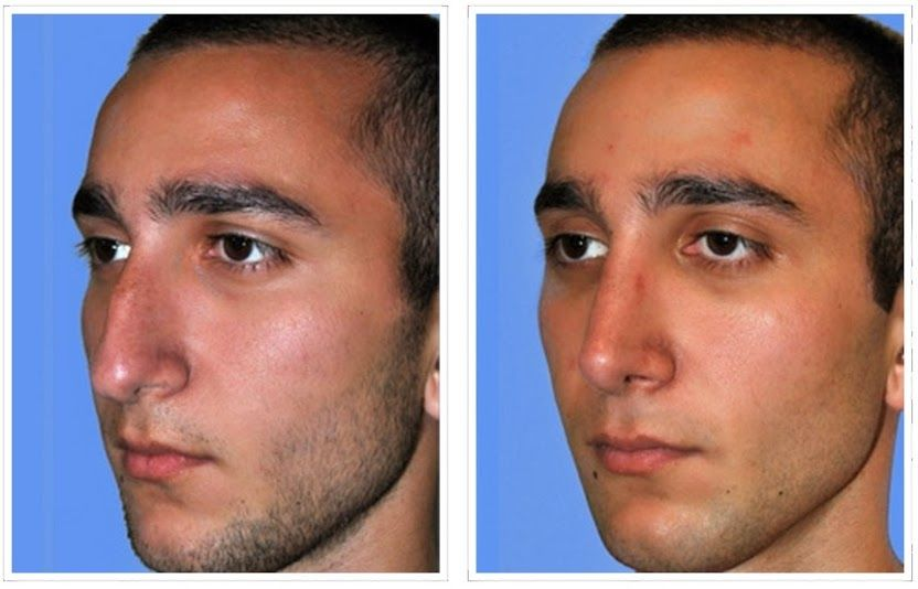 Pin By Yasmee Bruha On Nose Plastic Surgery