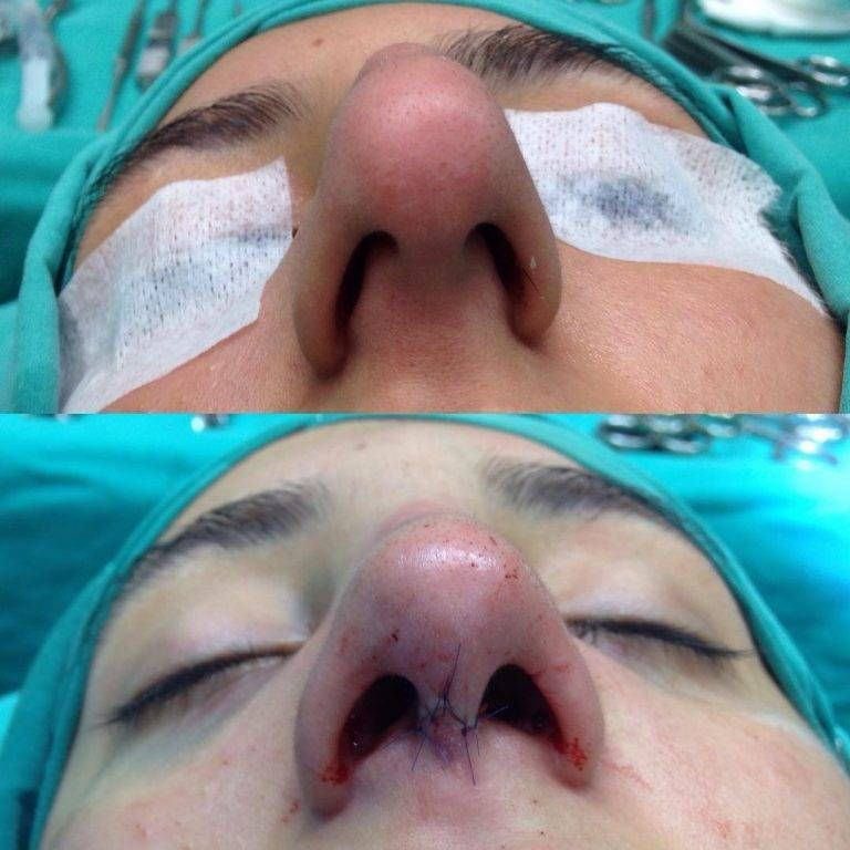 Rhinoplasty Bulbous Nose Before And After Bulbous Nose Rhinoplasty Rhinoplasty Surgery
