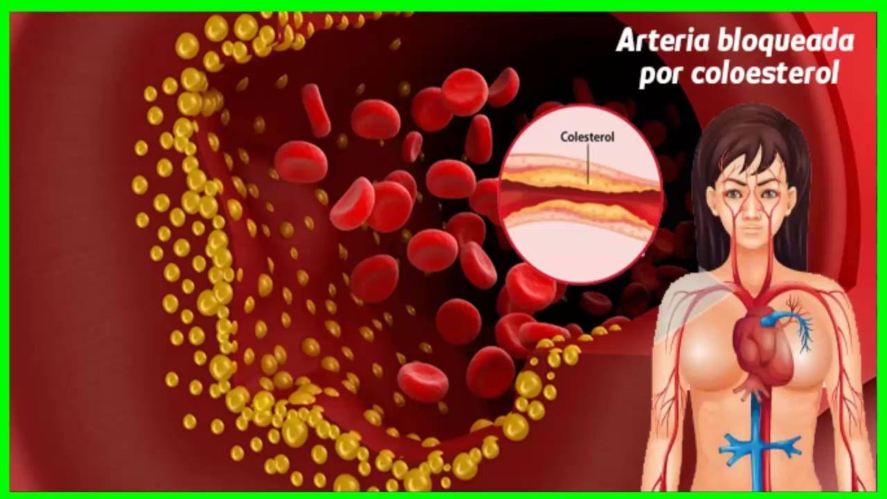 Colesterol el Bueno Y el Malo    Hipercolesterolemia