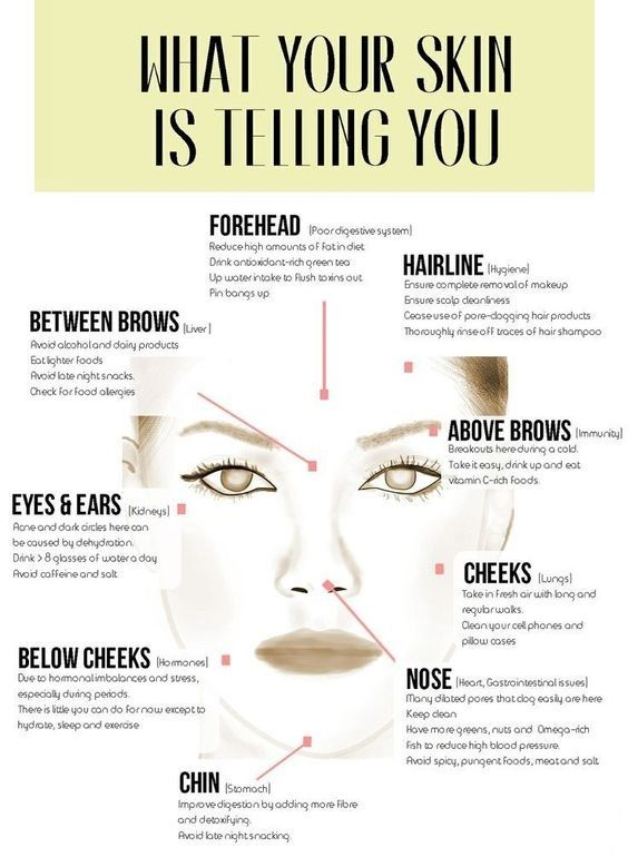 an interesting diagram that shows what can cause acne on different rh pinterest com What Causes Pimples acne diagram face