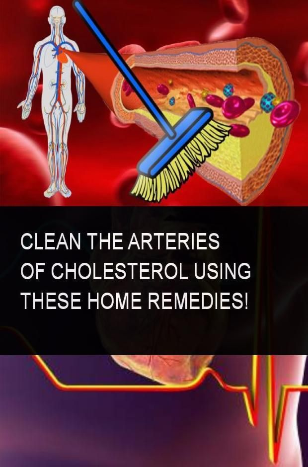 Clean the Arteries of Cholesterol Using these Home ...
