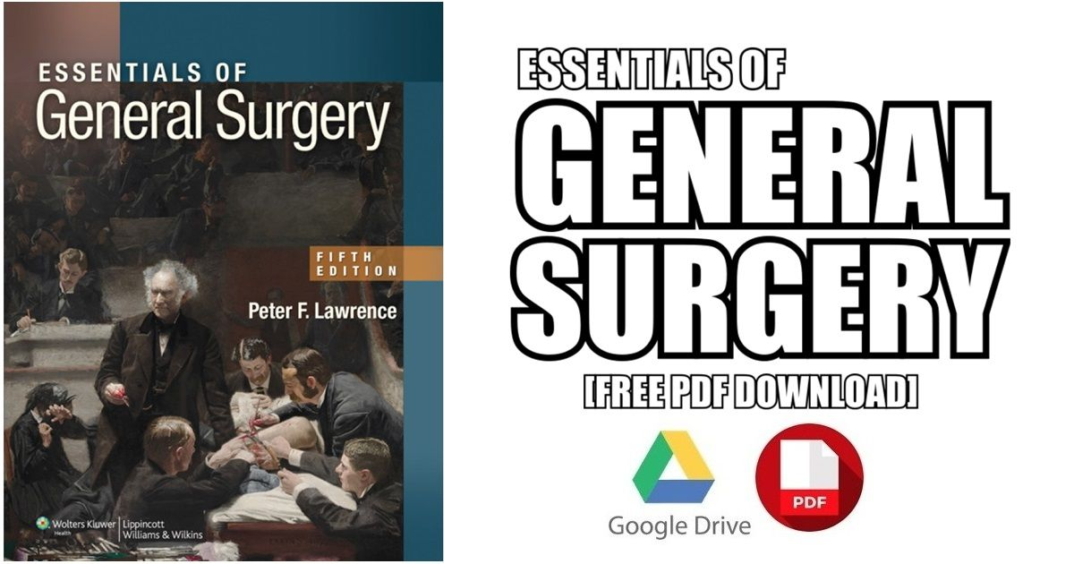 This Article Contains Essentials Of General Surgery PDF For