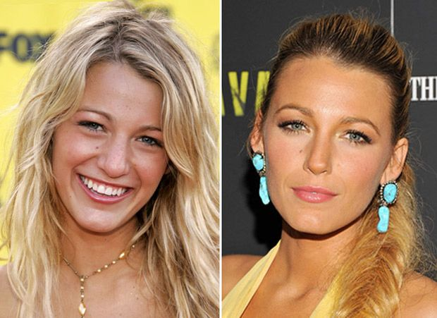 18 Celebrities Before And After Nose Jobs Blake Lively Plastic