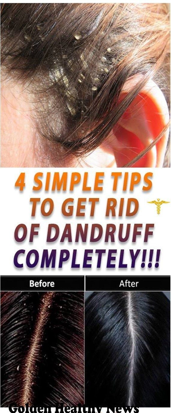 #wieghtloss #completely #dandruff #fitness #simple #tips #get #rid #to #of4 Simple Tips to Get Rid o...