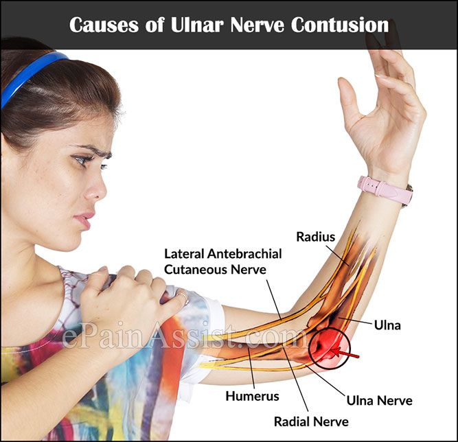 Causes of Ulnar Nerve Contusion Anatomy and Physiology Pinterest
