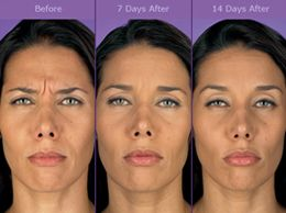 How Botox works and how long does a Botox Injection ...