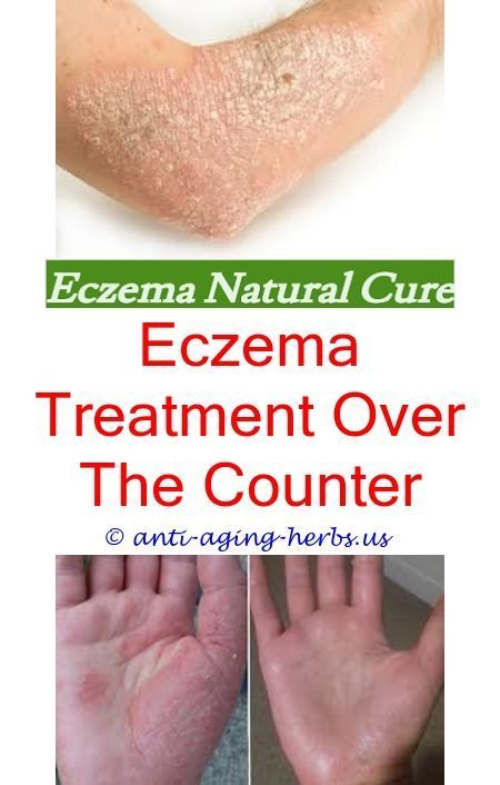 reasons for eczema eczema bumps on arms - how to get rid ...