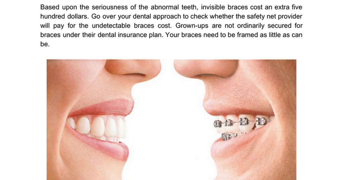 How Invisible Braces Are Better Option That Traditional Metal
