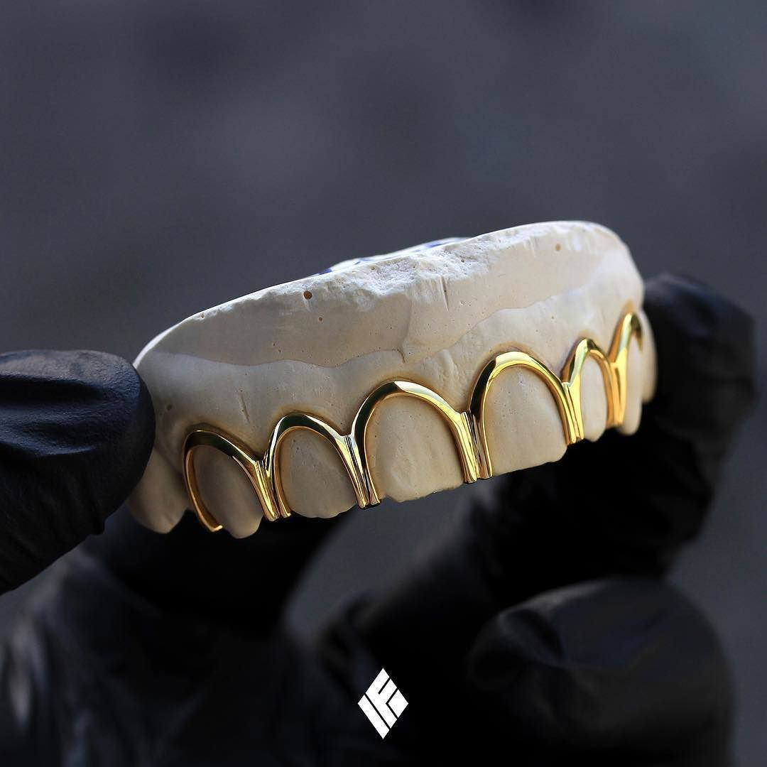 Custom 14k Yellow Gold Top 6 Bottomless Open Frame Grills Specially Made For Chrisunion Grillz Customjewelry Ifandco Gold Grillz Grillz Gold Teeth
