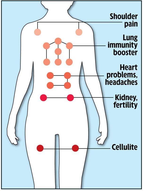 Hijama Points , Cupping points on the body   alternative medicine   http://www.hijamainlondon.com/