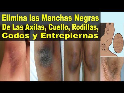 Elimina Las Manchas Negras De Las Axilas Cuello Rodillas Codos Y Entrepiernas Salud Y Algo Manchas Negras Como Quitar Cicatrices Remedios Para Las Manchas