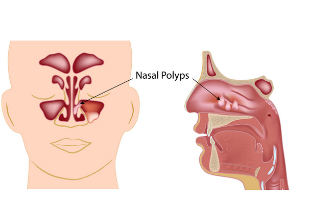 How To Naturally Get Rid Of Sinus Congestion