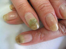 Imagenes de hongos en unas de las manos