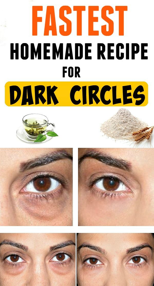 Fastest homemade recipe for dark circles ! | Dark circle