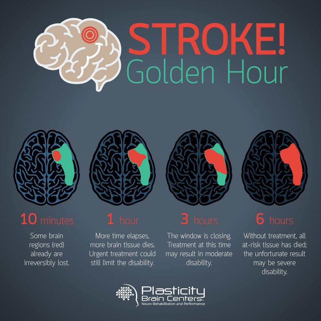 Pin By Plasticity Brain Centers On Plasticity Brain