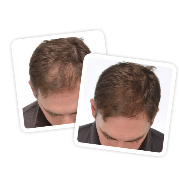"""I Suggest to best hair laser growth product its new technology yes refer to """"http://igrowlaserindia.com"""" Bye."""