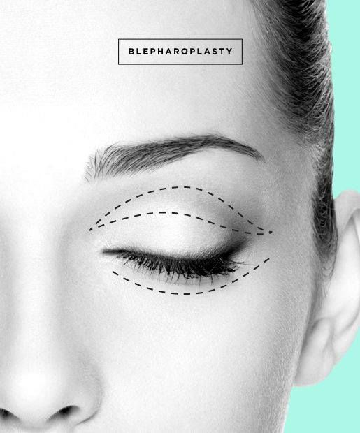 What Is The Most Common Facial Surgery For Someone In Their 40s Eye Surgery Facial Surgery Plastic Surgery Procedures