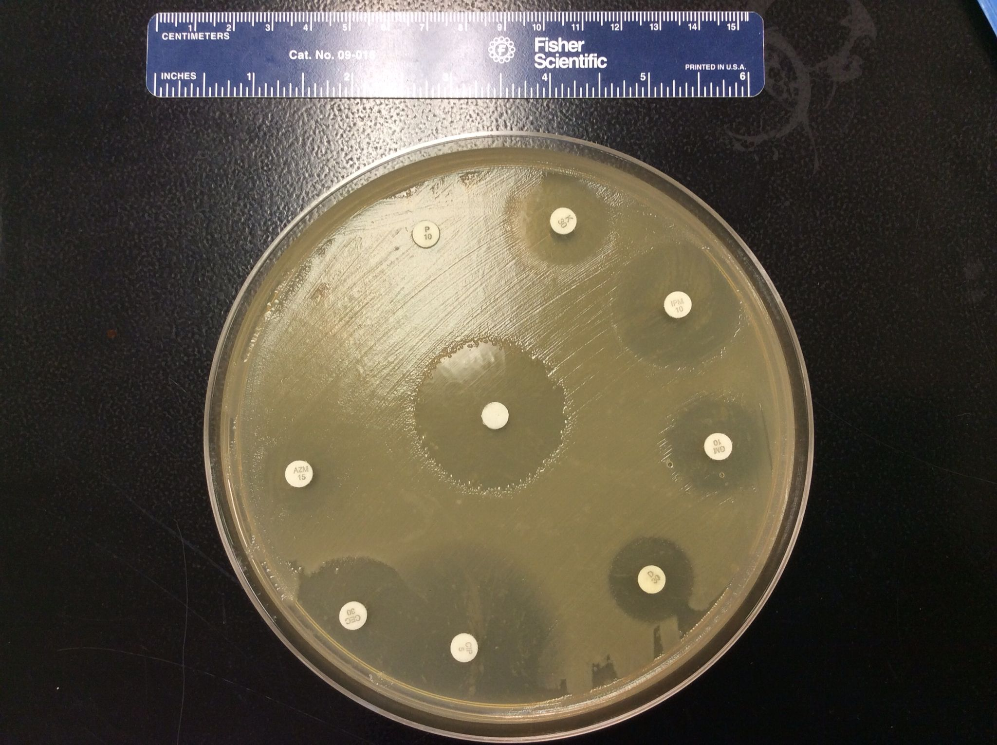 microbiology lab antibiotic sensitivity To determine the susceptibility of a microbial species against different antibiotic  -microbiology virtual lab i-antibiotic  the sensitivity.