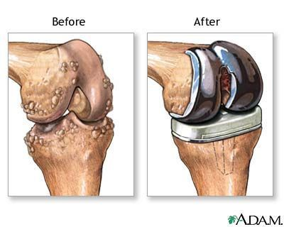 How Rheumatoid Arthritis Affects Each Part Of The Body Knee Replacement Knee Replacement Surgery Total Knee Replacement