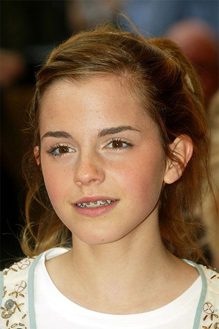 12 Famous Faces With Braces Emma Watson Hair Celebrities With Braces Braces Girls