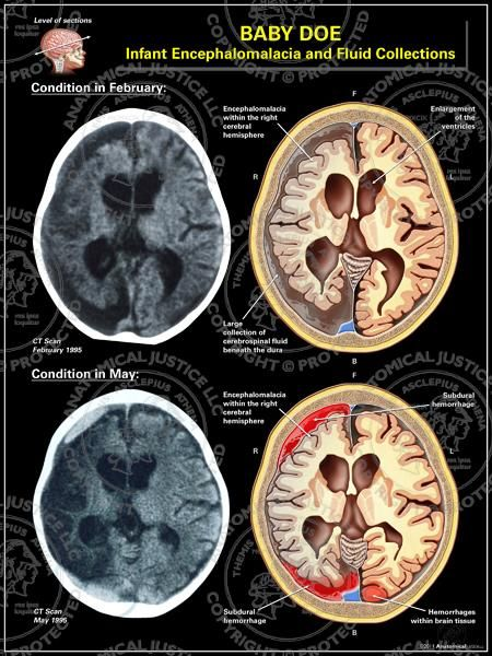 This exhibit features two axial CT renditions illustrating the ...