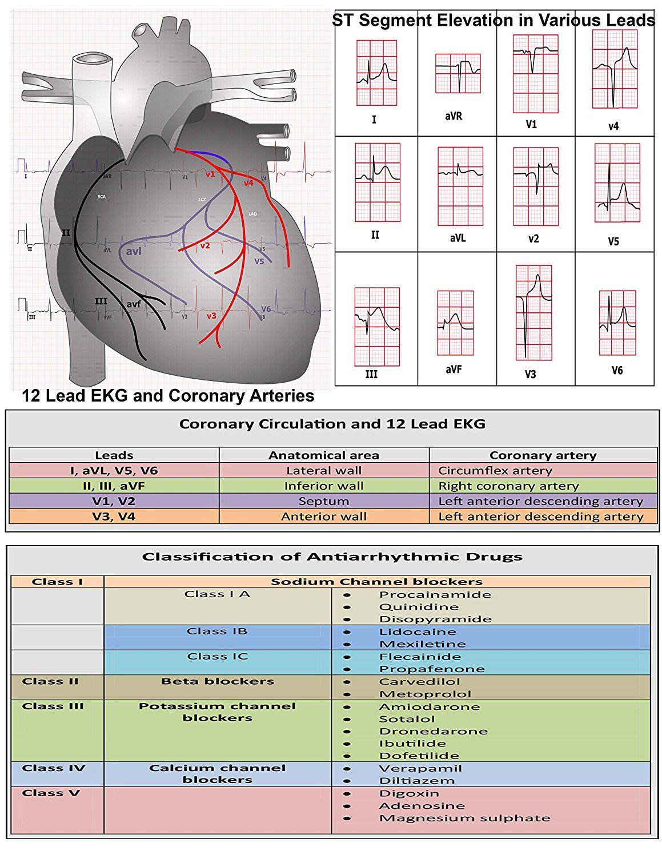 Antiarrhythmic Drugs Cheat Sheet Paramedicemt T