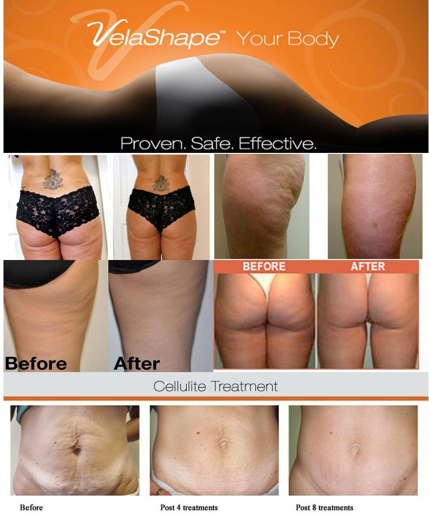Skinmedics client ~ Before and after 8 Velashape III treatments